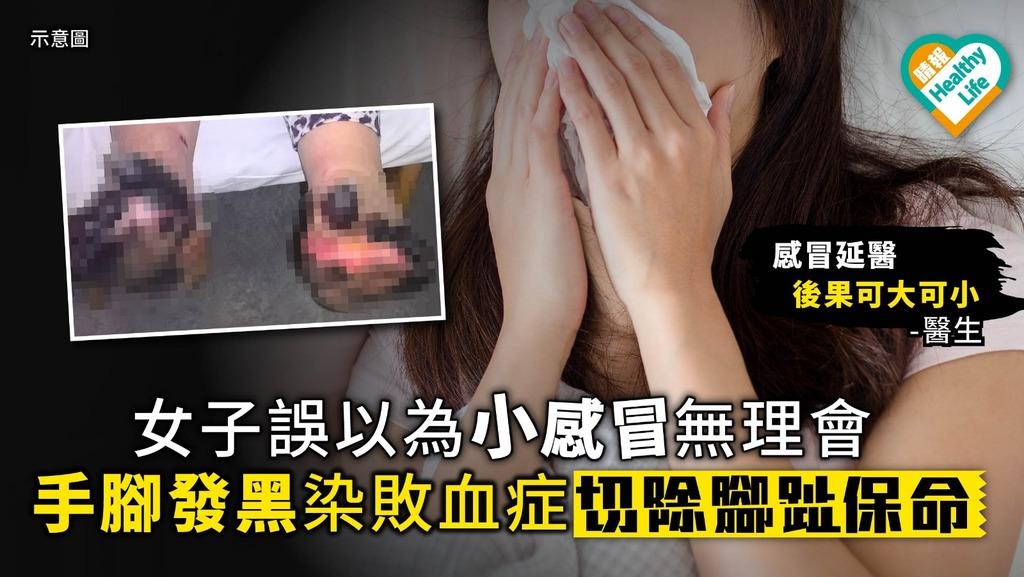 女子誤以為小感冒無理會 手腳發黑染敗血症切除腳趾保命