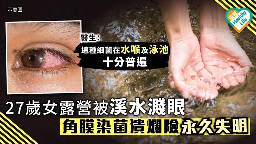 27歲女露營被溪水濺眼 角膜染菌潰爛險永久失視力