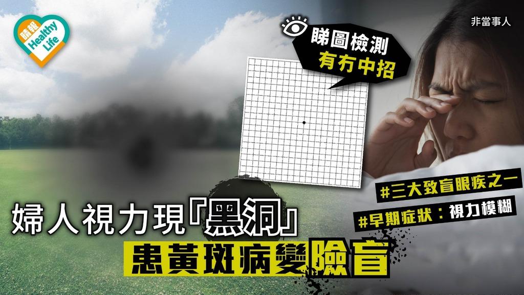 【致盲眼疾】婦人視力現「黑洞」患黃斑病變險盲 睇圖檢測有冇中招