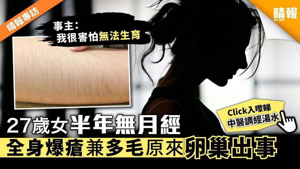【晴報專訪】27歲女半年無月經 全身爆瘡兼多毛全因卵巢出事