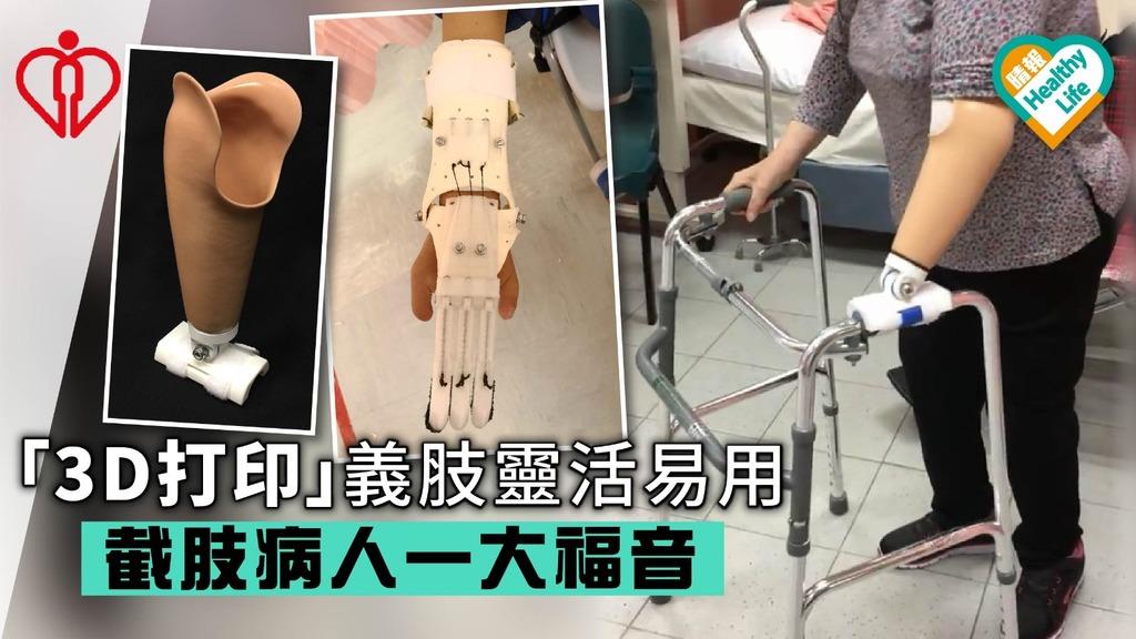 「3D打印」義肢靈活易用截肢病人一大福音
