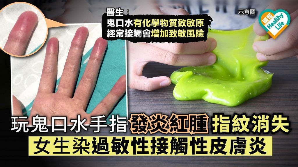 自製鬼口水致手指發炎指紋消失 女生染過敏性接觸性皮膚炎