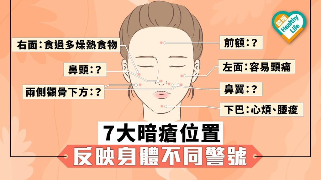 7大暗瘡位置 反映身體不同警號【內附3款食療】