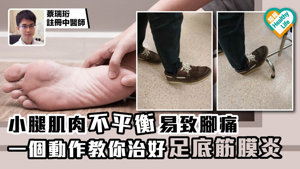 小腿肌肉不平衡易致腳痛 一個動作教你治好足底筋膜炎
