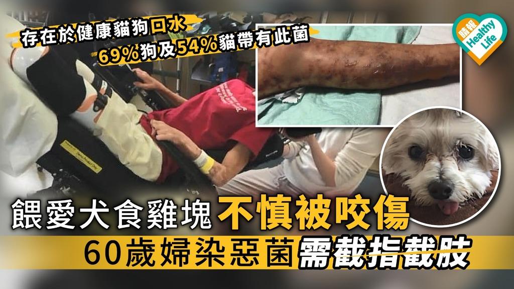 餵愛犬食雞塊不慎被咬傷 60歲婦染惡菌需截指截肢