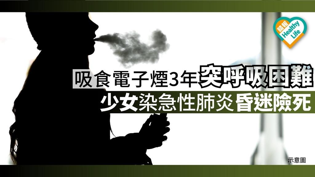 吸食電子煙3年突呼吸困難 少女染急性肺炎昏迷險死【附醫生解說】