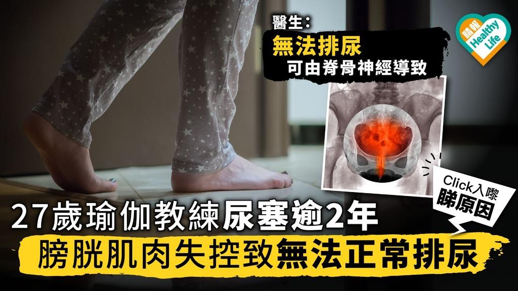27歲瑜伽教練尿塞逾2年 膀胱肌肉失控致無法正常排尿 醫生:可由脊骨神經導致