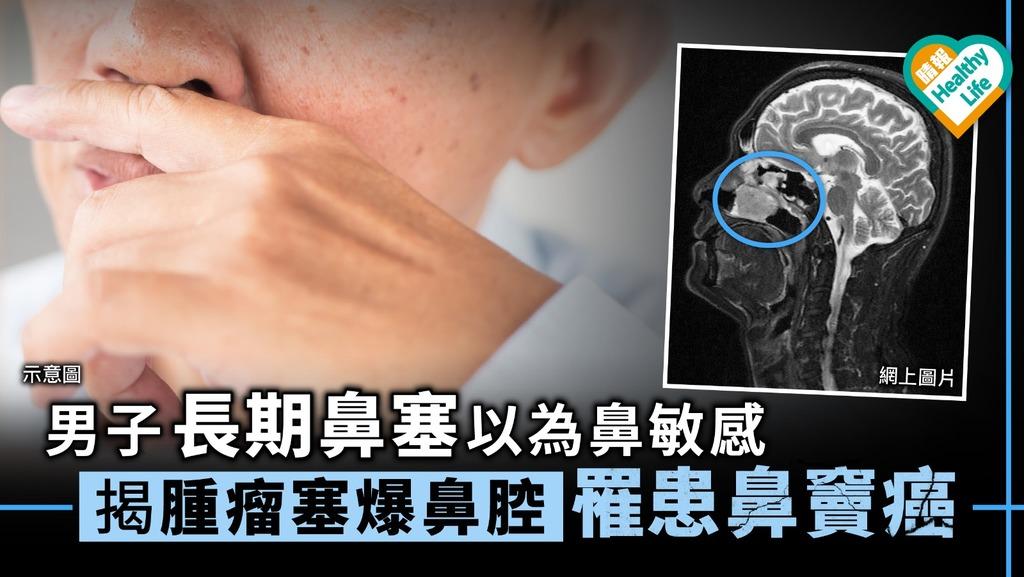 男子長期鼻塞鼻敏感 揭腫瘤塞爆鼻腔罹患鼻竇癌