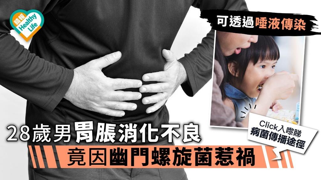28歲男胃脹消化不良 竟因幽門螺旋菌惹禍 醫生:3個傳播途徑要小心