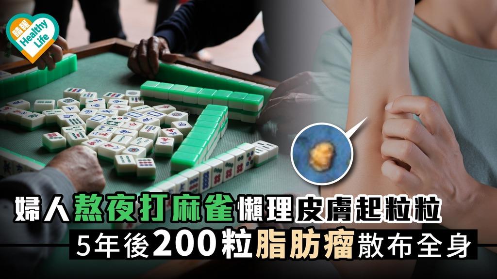婦人熬夜打麻雀懶理皮膚起粒粒 5年後200粒脂肪瘤散布全身