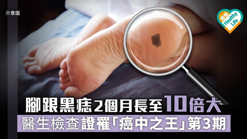 腳跟黑痣2個月長至10倍大 醫生檢查證罹第三期皮膚癌