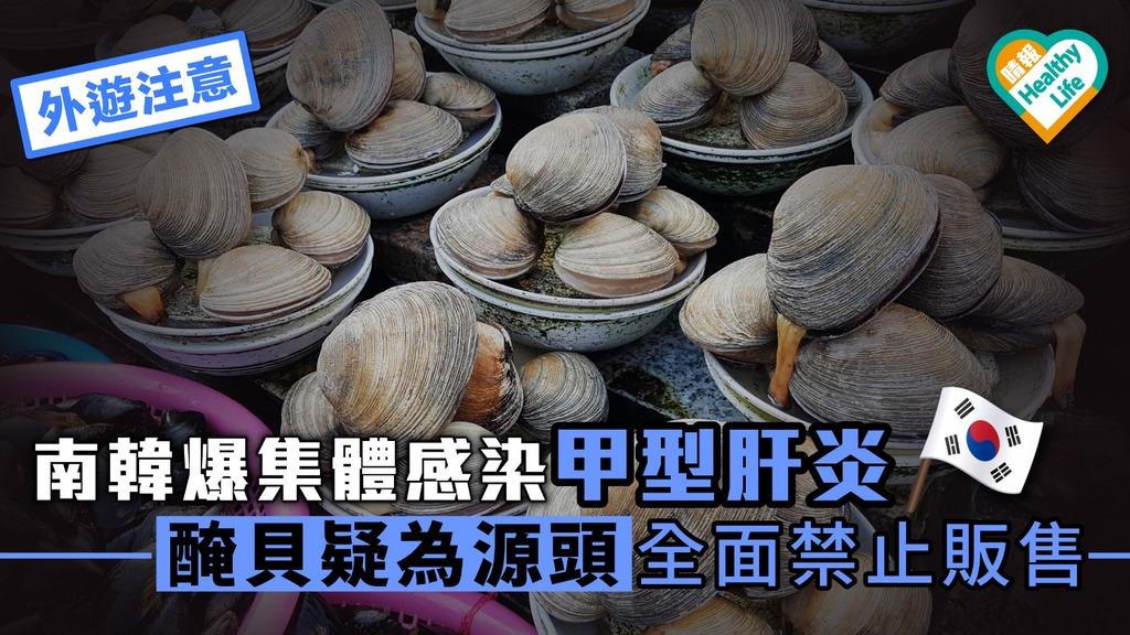 【外遊注意】南韓爆集體感染甲型肝炎 醃貝疑為源頭全面禁止販售
