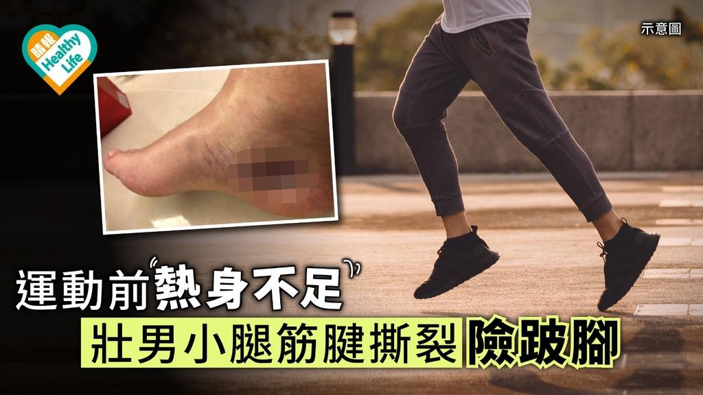 運動前熱身不足 壯男小腿筋腱撕裂險跛腳【4招判定有否跛腳】