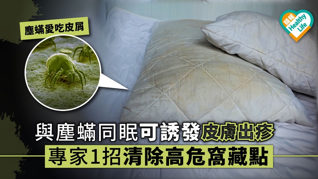 與塵蟎同眠可誘發皮膚出疹 專家1招清除高危窩藏點