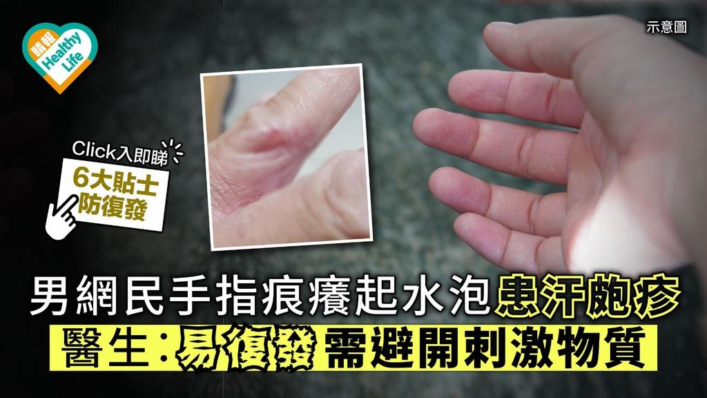 男網民手指痕癢起水泡患汗皰疹 醫生︰容易復發需避開刺激物
