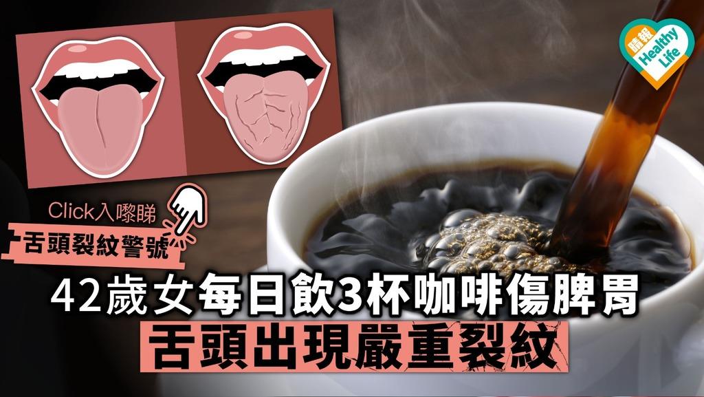 42歲女每日飲3杯咖啡傷脾胃 舌頭出現嚴重裂紋【內附舌頭裂紋分析】