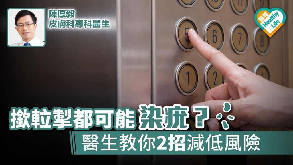 摸門把升降機按鈕都可能染疣? 醫生教你2招減低風險