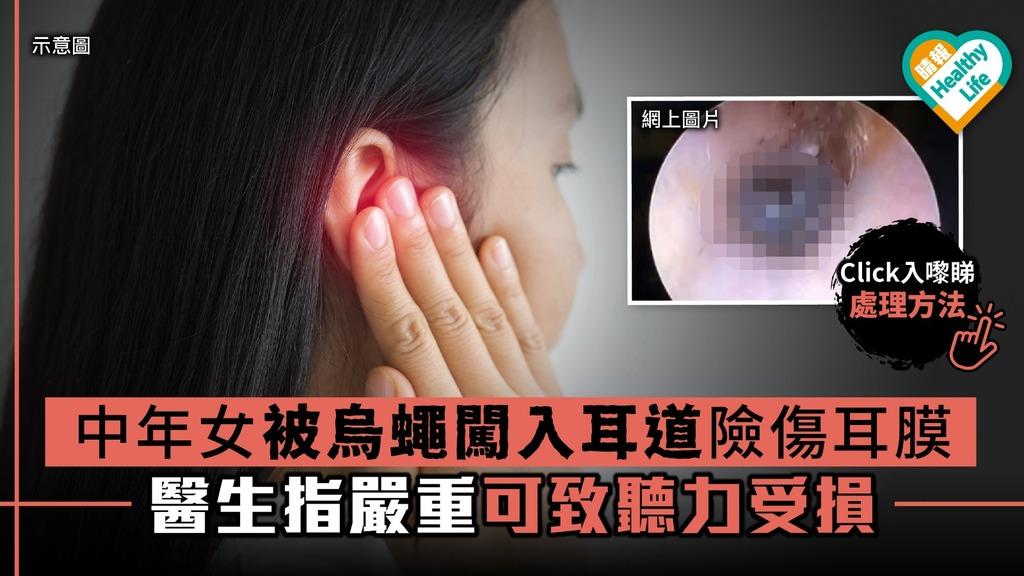 中年女被烏蠅闖入耳道險傷耳膜 醫生指嚴重可致聽力受損