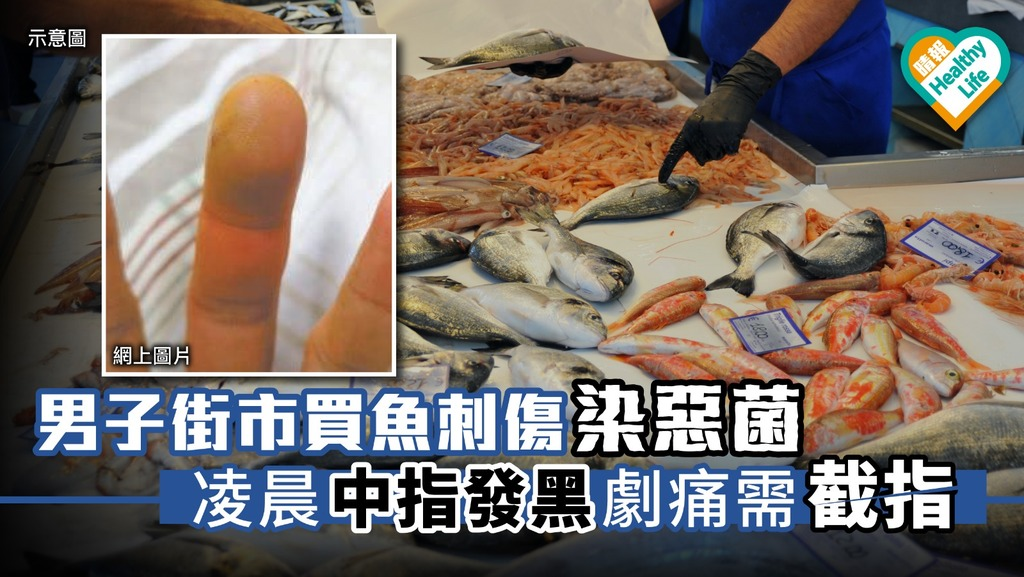 男子街市買魚刺傷染惡菌 凌晨中指發黑劇痛需截指