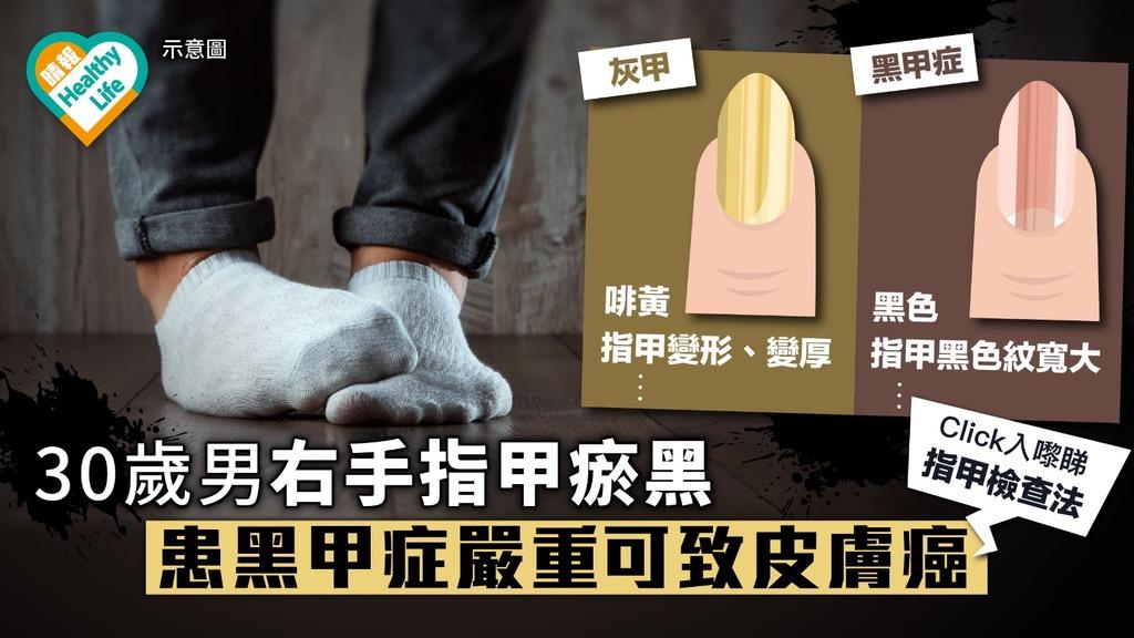 30歲男右手指甲瘀黑無理 患黑甲症嚴重可致皮膚癌【附指甲檢查法】