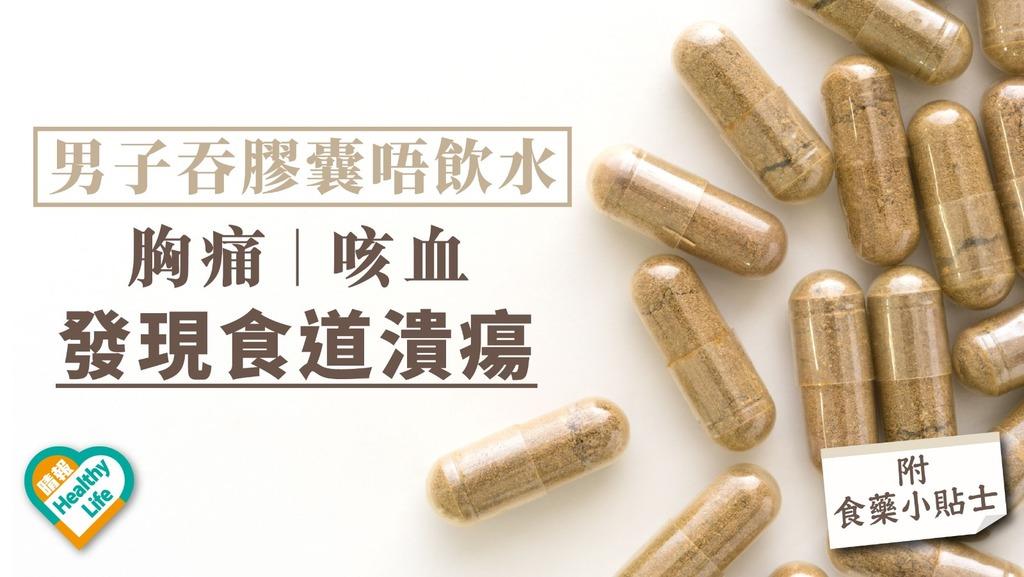 男子吞膠囊藥唔飲水 胸痛咳血照內窺鏡發現食道潰瘍