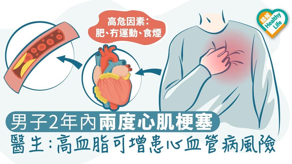 男子2年內兩度心肌梗塞 醫生:高血脂可增患心血管病風險