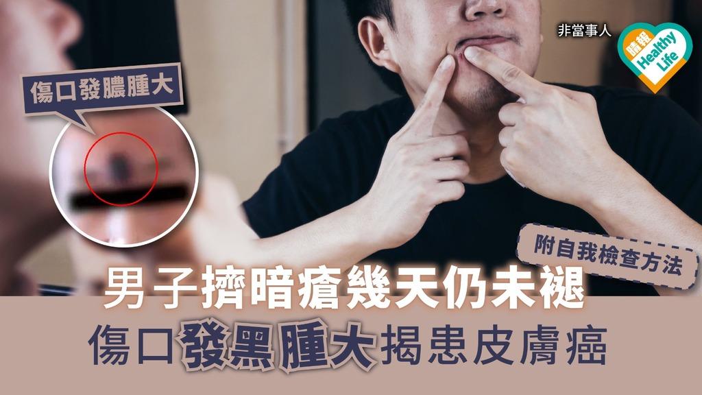 男子擠暗瘡幾天仍未褪 傷口發黑腫大揭患皮膚癌
