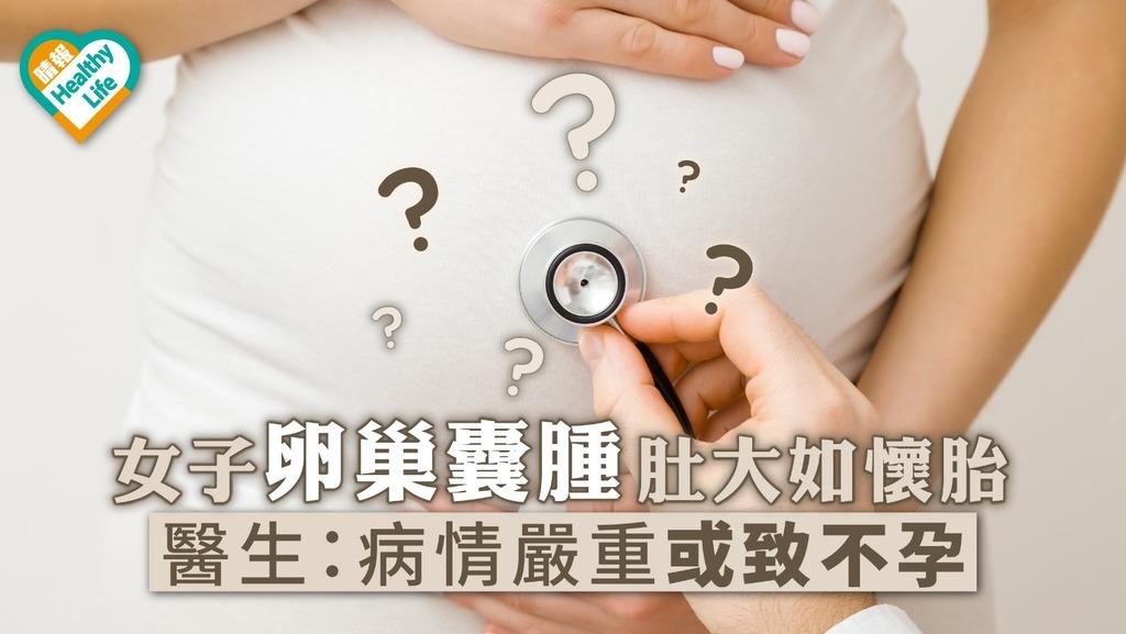 女子卵巢囊腫肚大如懷胎 醫生:病情嚴重或致不孕