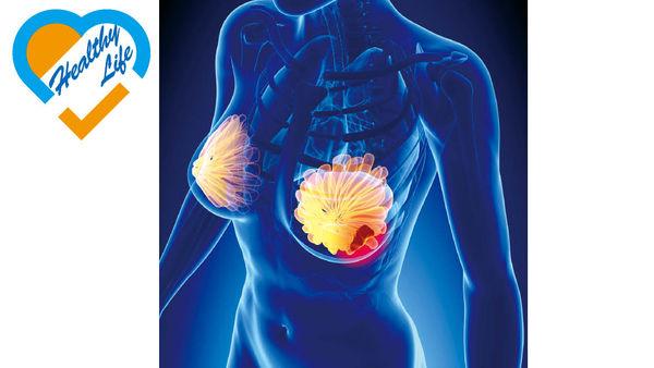 3D乳房造影技術 檢測乳癌更準確