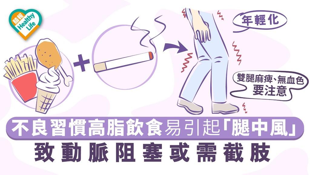 【年輕化】不良習慣高脂飲食易致「腿中風」引起動脈阻塞或需截肢
