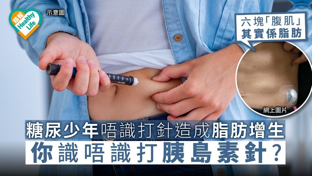 糖尿少年用錯方法注射胰島素 炫耀腹肌卻被揭皮下脂肪增生【注射胰島素要點】