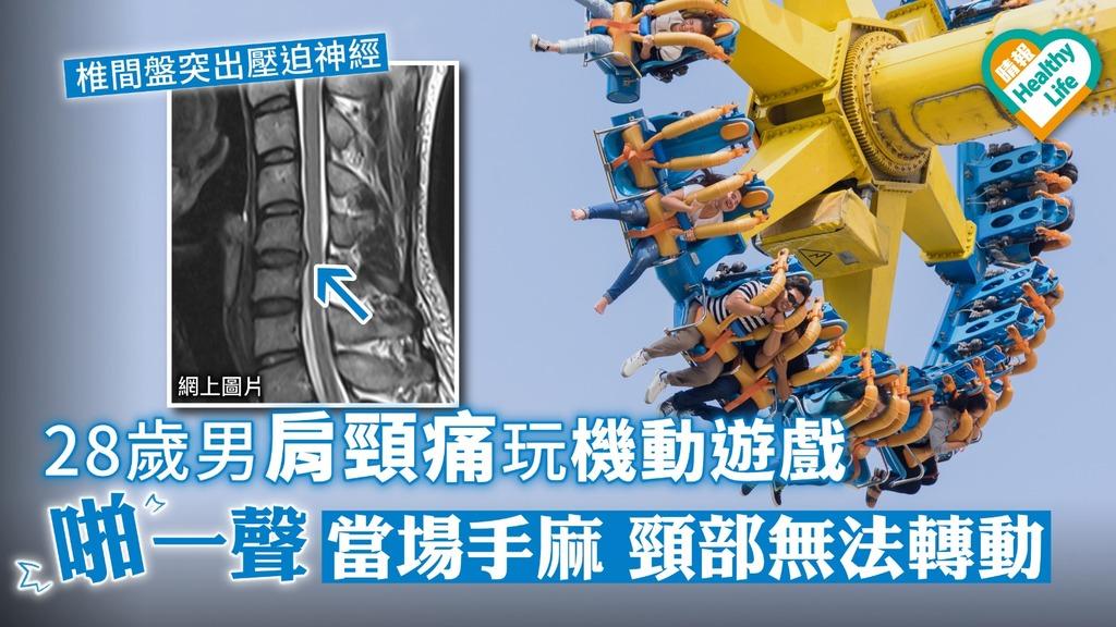 28歲男肩頸痛玩機動遊戲 「啪」一聲當場手麻頸部無法轉動