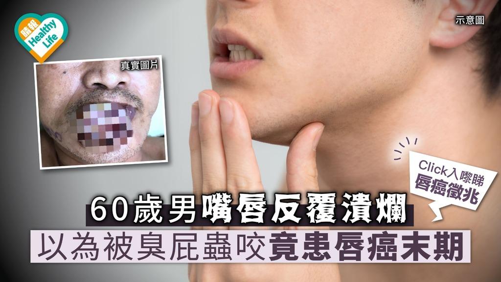60歲男嘴唇反覆潰爛 以為被臭屁蟲咬竟患唇癌末期【附醫生解說】