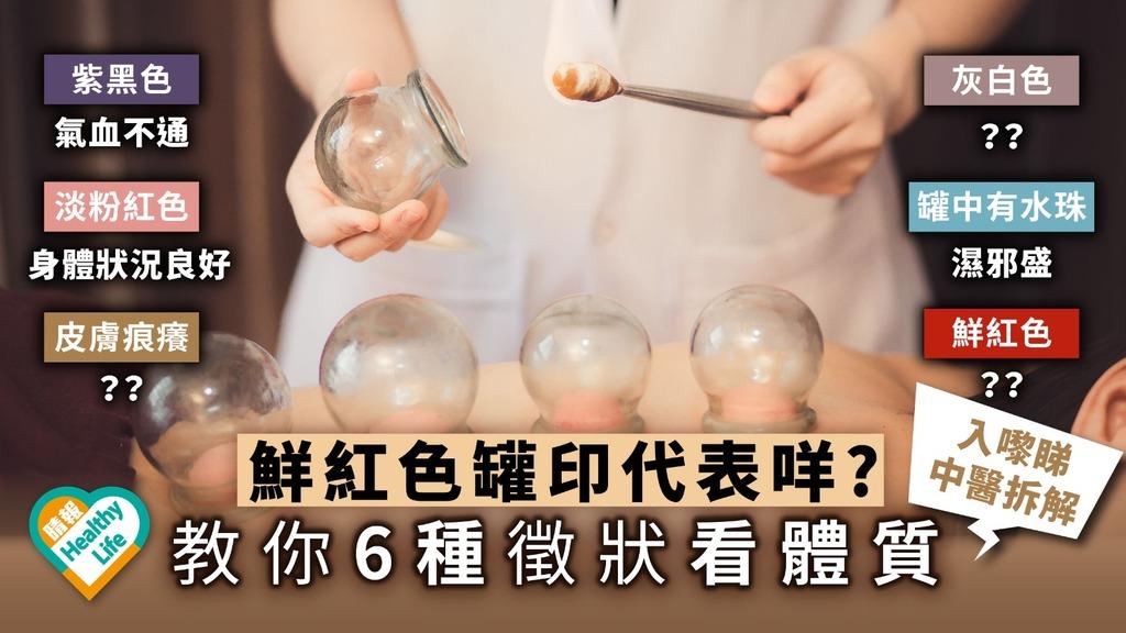 細說拔罐的效用 教你6款罐印看體質
