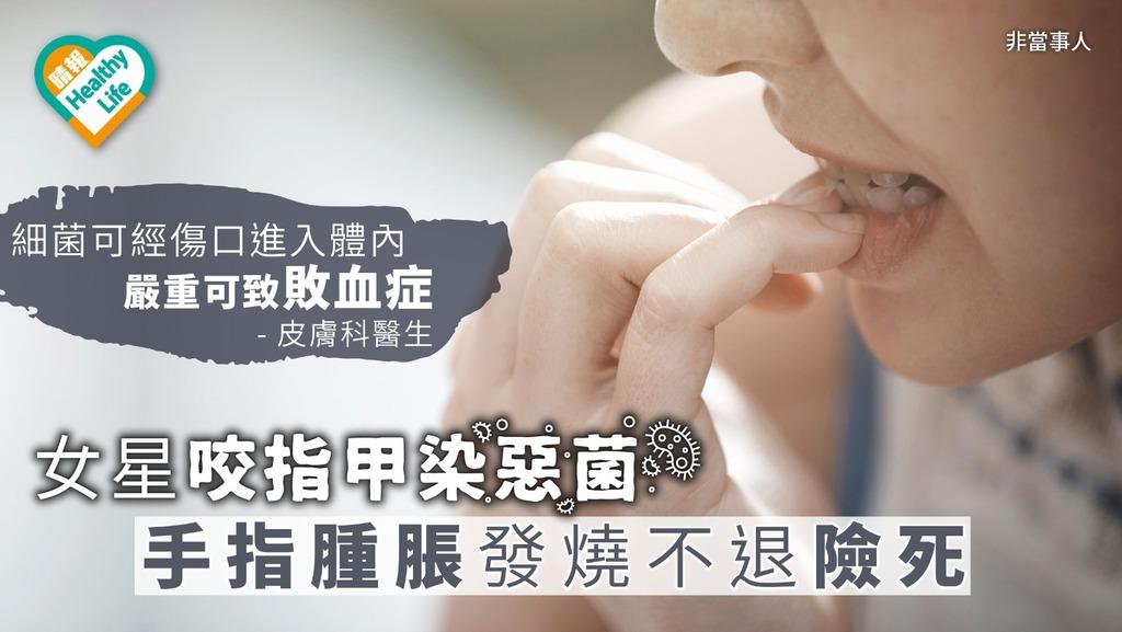 女星咬指甲染惡菌 手指腫脹發燒不退險死