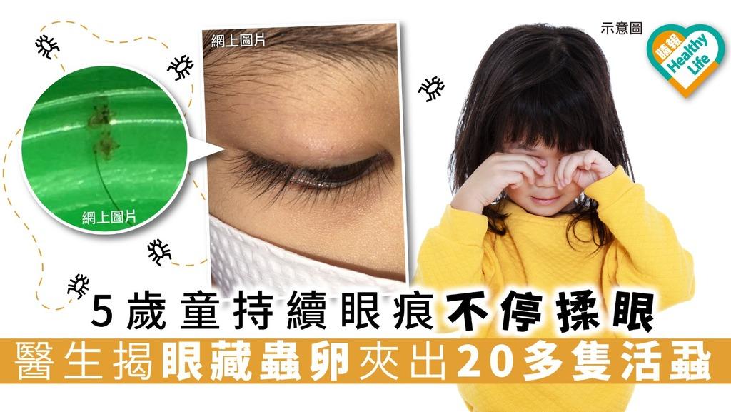 5歲童持續眼痕不停揉眼 醫生揭眼藏蟲卵夾出20多隻活蝨