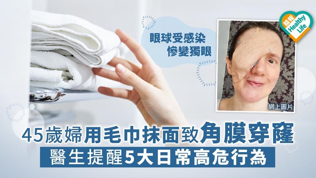 45歲婦用毛巾抹面致角膜穿窿 醫生提醒5大日常高危行為