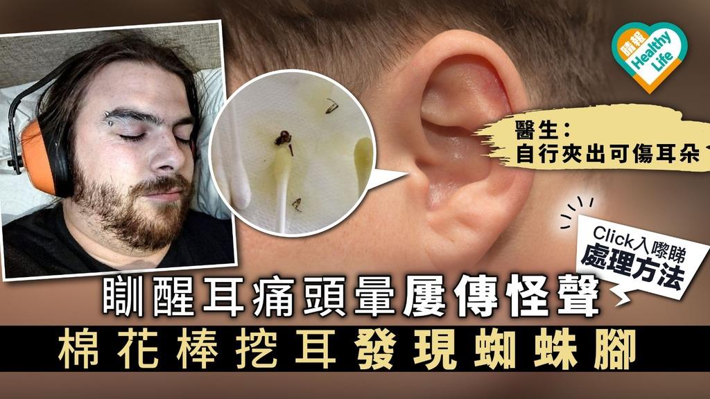 瞓醒耳痛頭暈屢傳怪聲 棉花棒挖耳發現蜘蛛腳