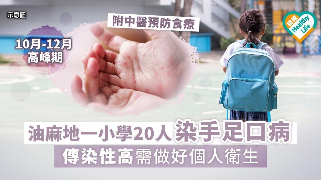 油麻地一小學20人染手足口病 首周傳染性最高需做好個人衛生