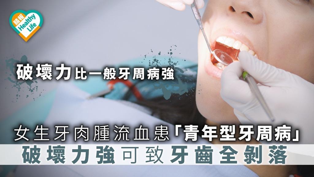女生牙肉紅腫流血患「青年型牙周病」破壞牙骨恐致牙齒全剝落