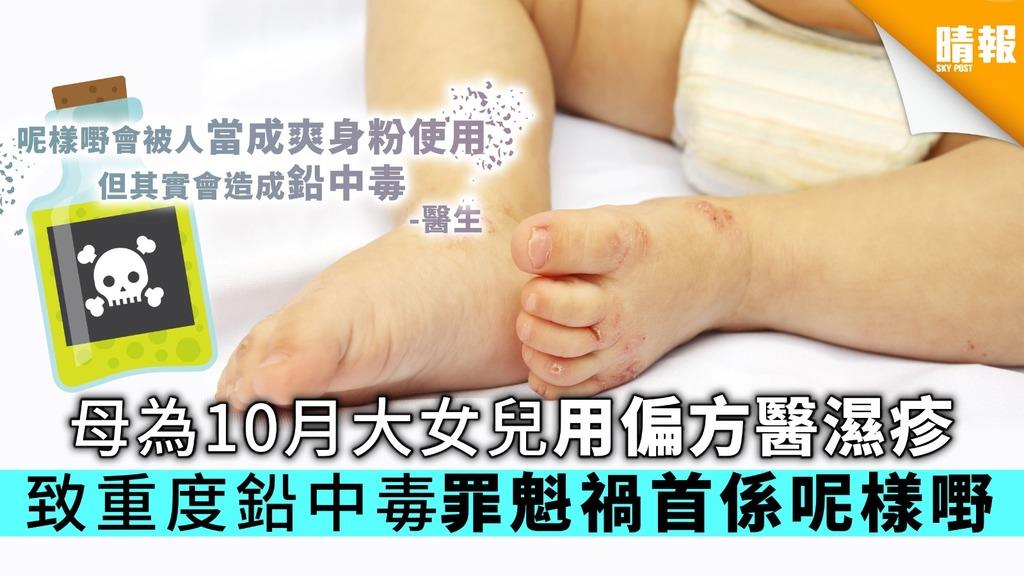 母為10月大女兒用偏方醫濕疹 致重度鉛中毒罪魁禍首係呢樣嘢