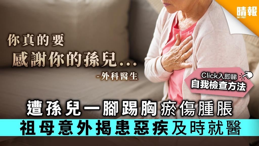 遭孫兒一腳踢胸瘀傷腫脹 祖母意外揭患惡疾及時就醫