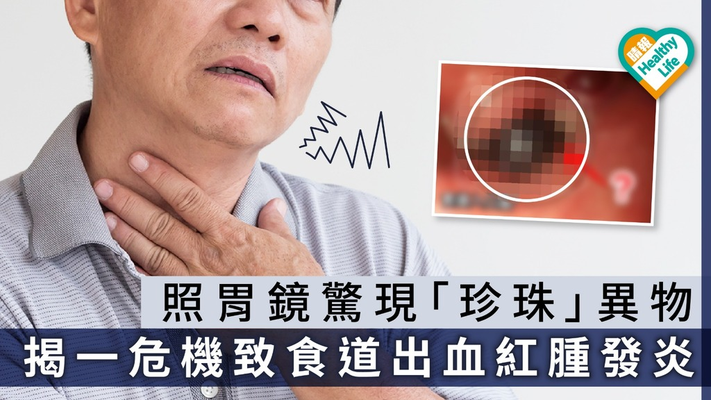 照胃鏡驚現「珍珠」異物 揭一危機致食道出血腫發炎