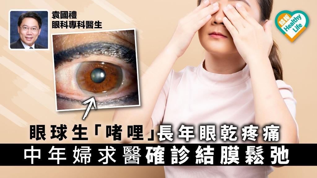 眼球生「啫喱」長年眼乾疼痛 中年婦求醫確診結膜鬆弛