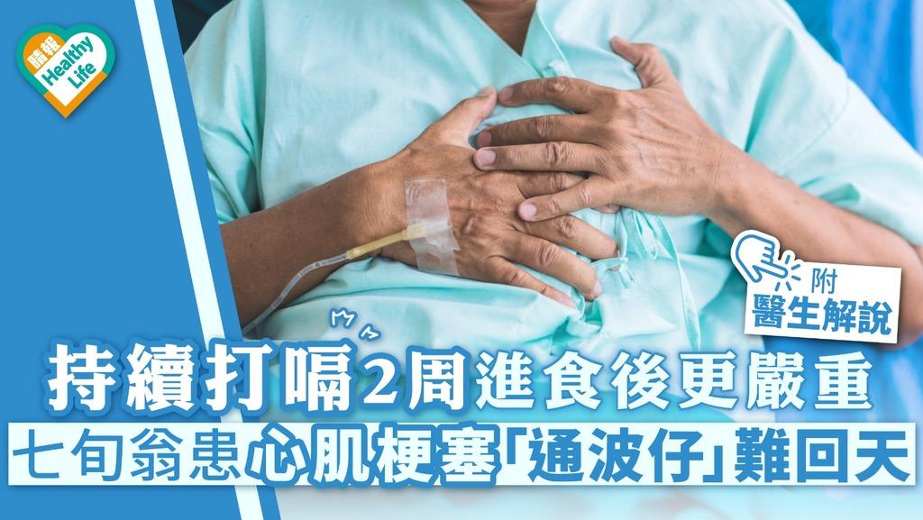持續打嗝2周進食後更嚴重 七旬翁患心肌梗塞「通波仔」難回天