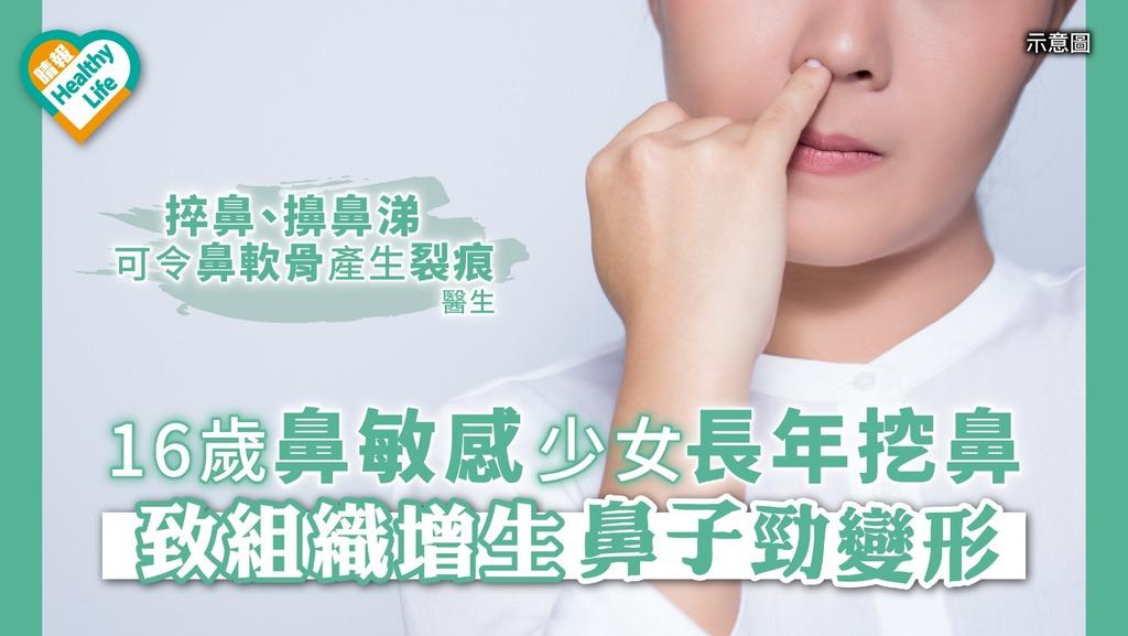 16歲鼻敏感少女長年挖鼻 致組織增生鼻子勁變形
