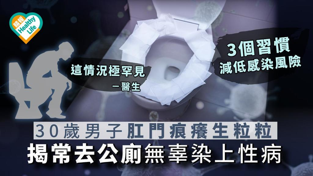【罕見案例】30歲男子肛門痕癢生粒粒 揭常去公廁無辜染上性病