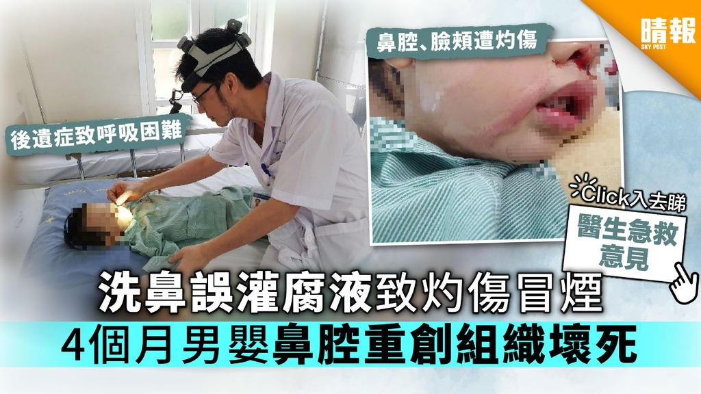 洗鼻誤灌腐液致灼傷冒煙 4個月男嬰鼻腔重創組織壞死【附藥物處理須知】