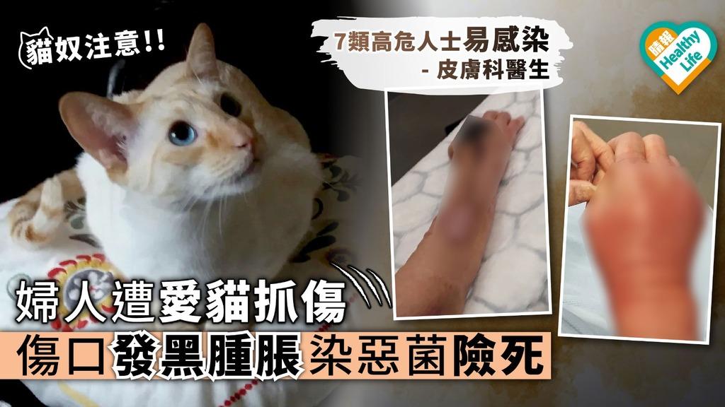 【貓奴注意】婦人遭愛貓抓傷 傷口發黑腫脹染惡菌險死