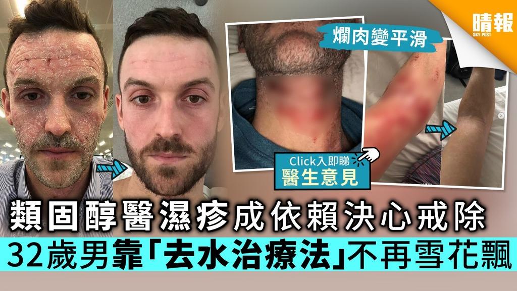 類固醇醫濕疹成依賴決心戒除 32歲男靠「去水治療法」不再雪花飄【附醫生意見】